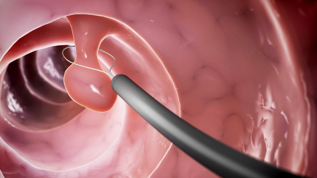 Illustration der Entfernung eines Polypen während einer Koloskopie im Darm
