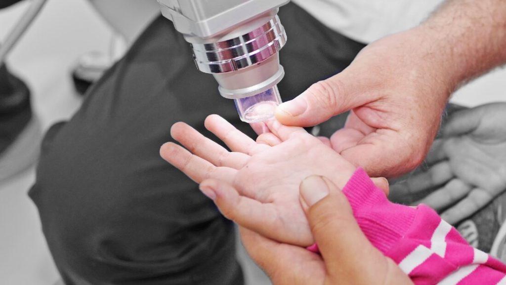 Dermatologe behandelt den Finger eines kleinesn Mädchens mit Infrarotlicht