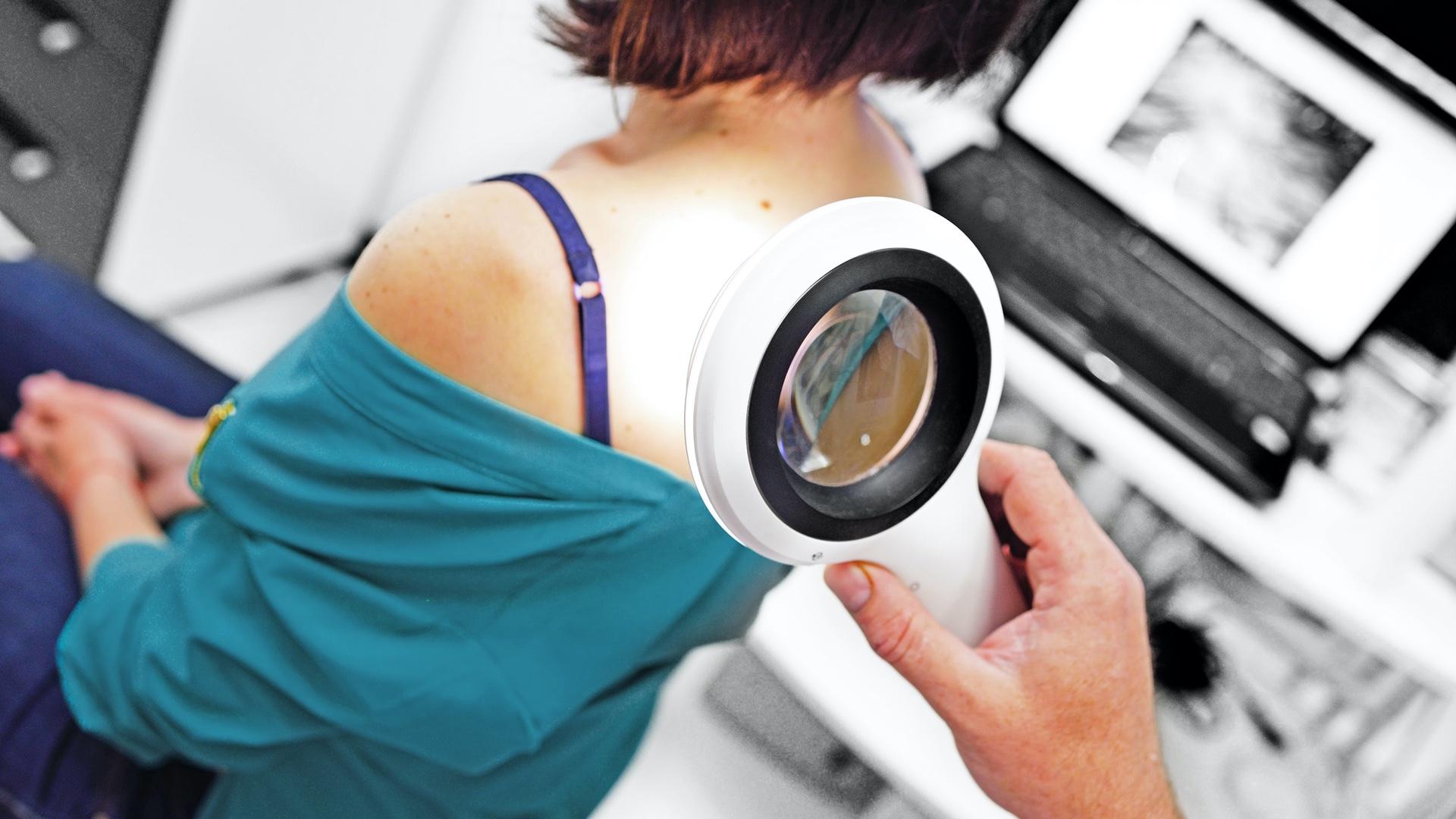 Eine junge Frau wird auf Hautkrebs untersucht