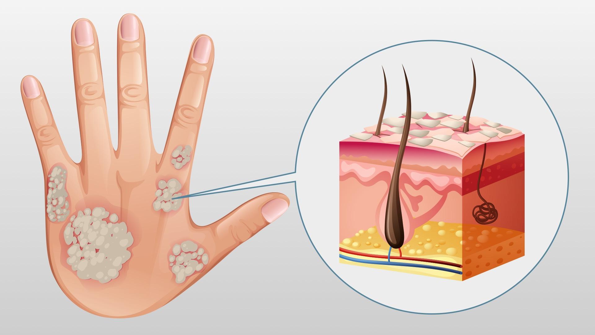 Frau kratzt sich aufgrund einer Psoriasiserkrankung am Handgelenk, die Haut ist gerötet