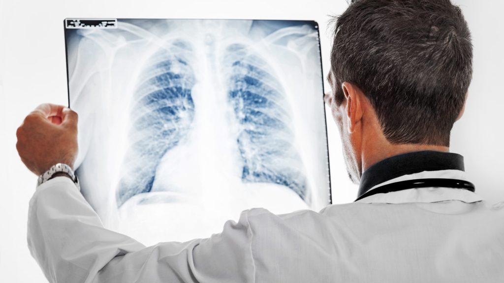 Ein Pneumologe sieht sich ein Röntgenbild der Lunge an.