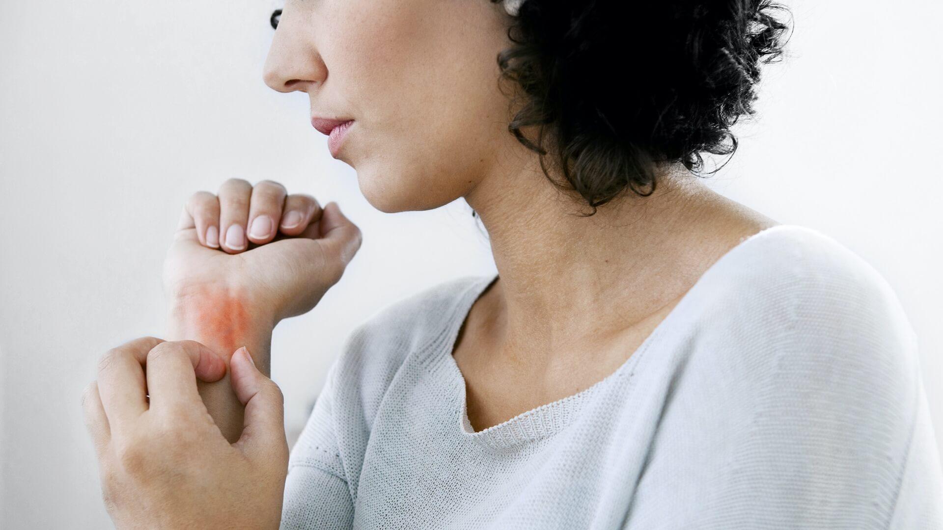 dermatologie-psoriasis
