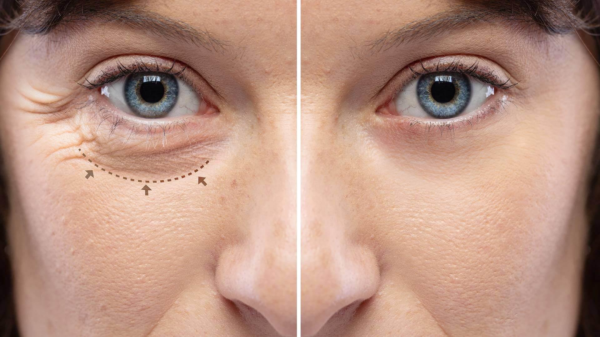 igel-dermatologie-lidstraffung