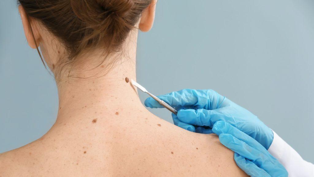 igel-dermatologie-operative-entfernung