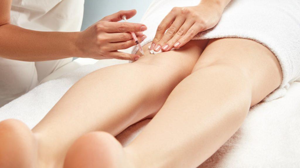 igel-dermatologie-sklerotherapie
