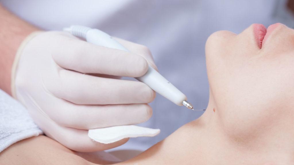 igel-dermatologie-warzenentfernung